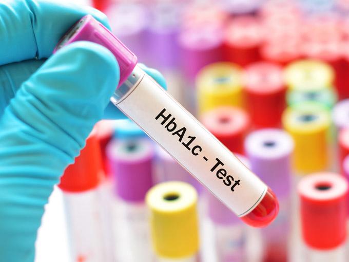 Hand in blauem Handschuh hält eine Blutprobe in der Hand, auf dem HbA1c-Test steht – im Hintergrund Reagenzgläser mit bunten Verschlüssen.