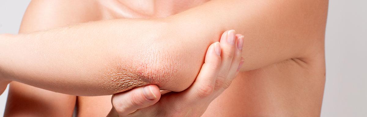 Eine Wunde am Arm, halb bedeckt von einem Pflaster - Diabetes kann die Wundheilung der Haut beeinflussen.
