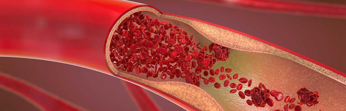 Die Darstellung einer verengten Blutbahn mmit Blutkörperchen im Querschnitt - die diabetische Angiopathie ist eine Gefäßerkrankung.