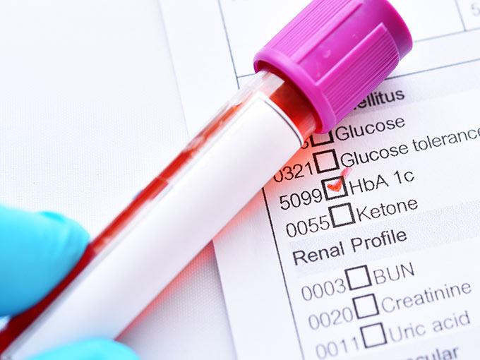 Um regelmäßig den HbA1c zu berechnen, sollten Diabetespatienten alle drei Monate eine Blutprobe abgeben.