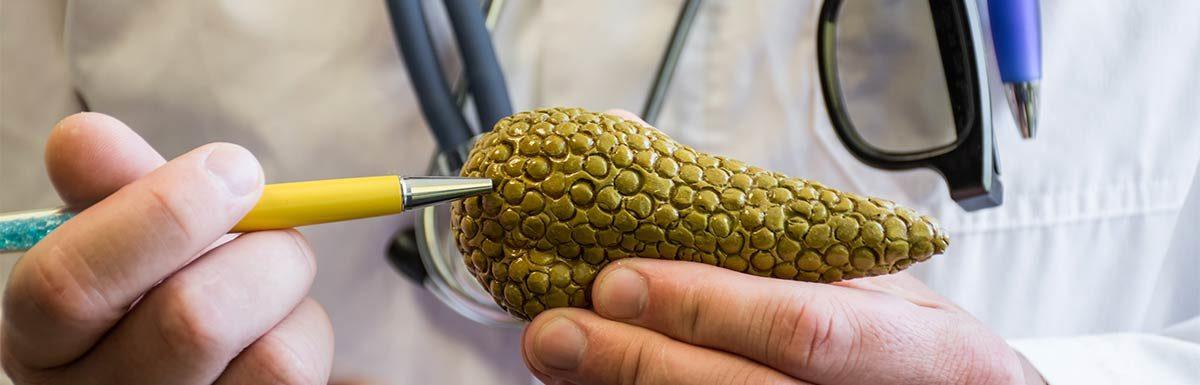 Arzt hält Modell einer Bauchspeicheldrüse: Pankreopriver Diabetes ist auf einen Mangel an Bauchspeicheldrüsengewebe zurückzuführen.