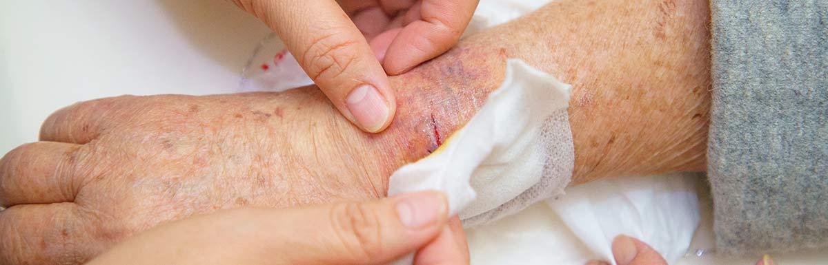 Offene Wunde am Arm wird behandelt - die Wundheilung kann bei Diabetes oft beeinträchtigt sein.